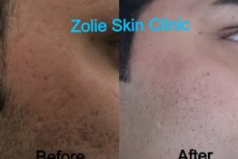 Laser Hair Reduction Treatment Before-After