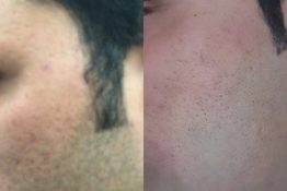 Cosmetic dermatology-Before-After