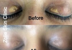 Eye Dark Circles Skin Treatment