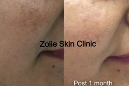 Pigmentation Treatment-Before-After