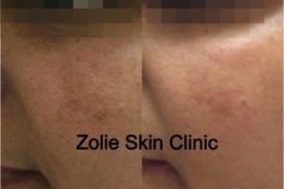 Pigmentation-Before-After