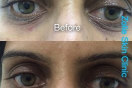 UnderEye Dark Circles Skin Treatment