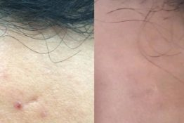 Chemical peel-Before-After