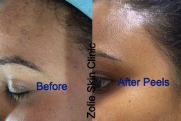 Skin Peel-Before-After