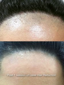 Laser Hair Treatment