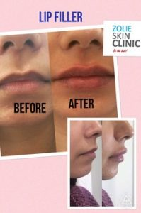 Lip Filler Treatment-Before-After