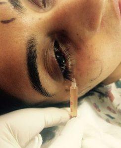 Eye Dark Circles Treatment