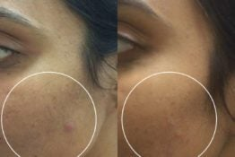 Acne Scar-Before-After