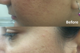 Acne Scar Treatment-Before-After