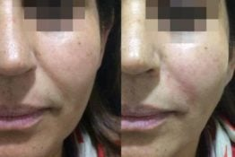 Filler-Before-After