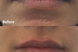 Lip Filler-Before-After