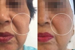 Cheek fller-Before-After