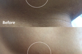 Mole- Before-After