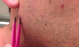 Ingrown Hair Treatment