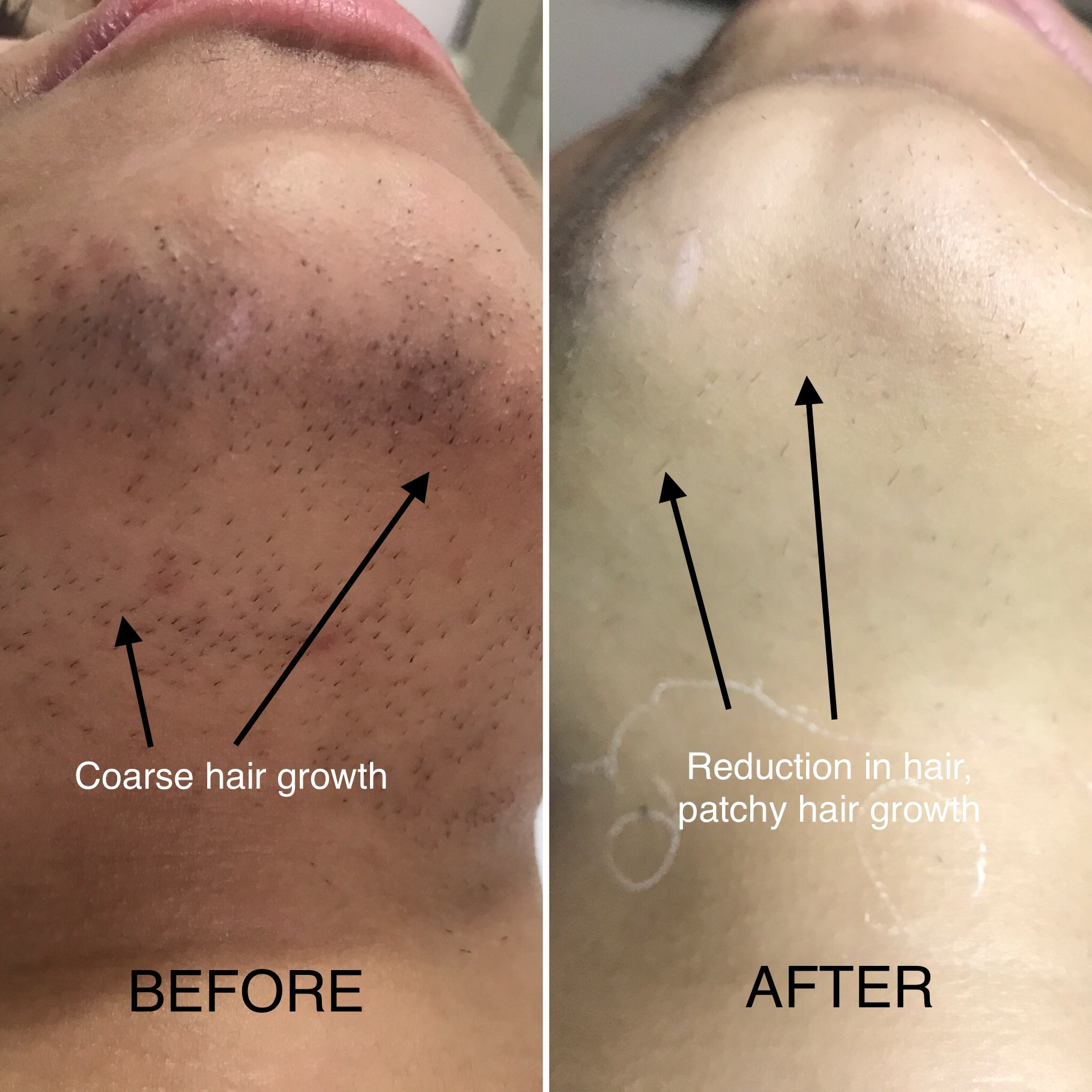Dos And Donts After A Laser Hair Removal Session Zolieskinclinic