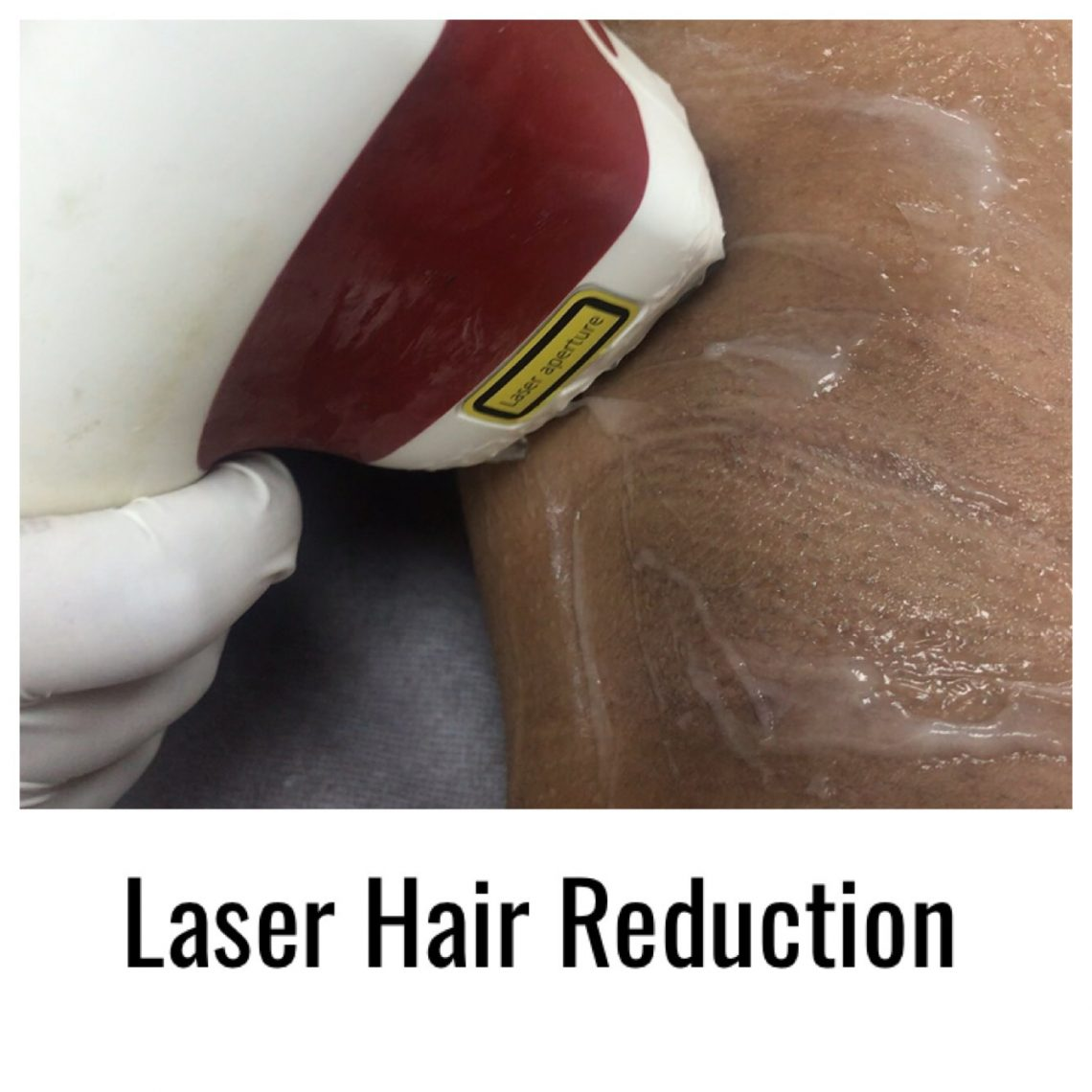 Laser-Hair-Reduction-ZolieSkinClinic
