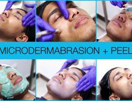 Zolie-Skin-Chemical-Peel-Treatment