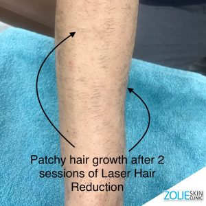 Laser-Hair-Reduction-patchy-hair-ZolieSkinClinic