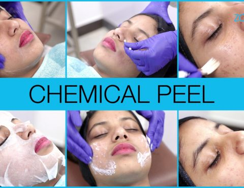 chemical-peel-acne-cover
