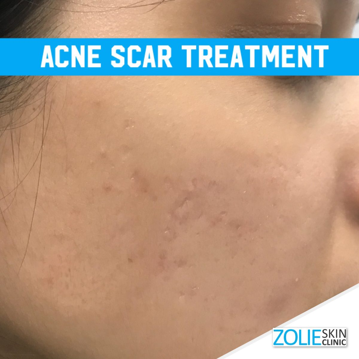 Treating Acne Scars Without Laser Zolieskinclinic