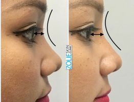 Non-Surgical-Rhinoplasty-Zolie