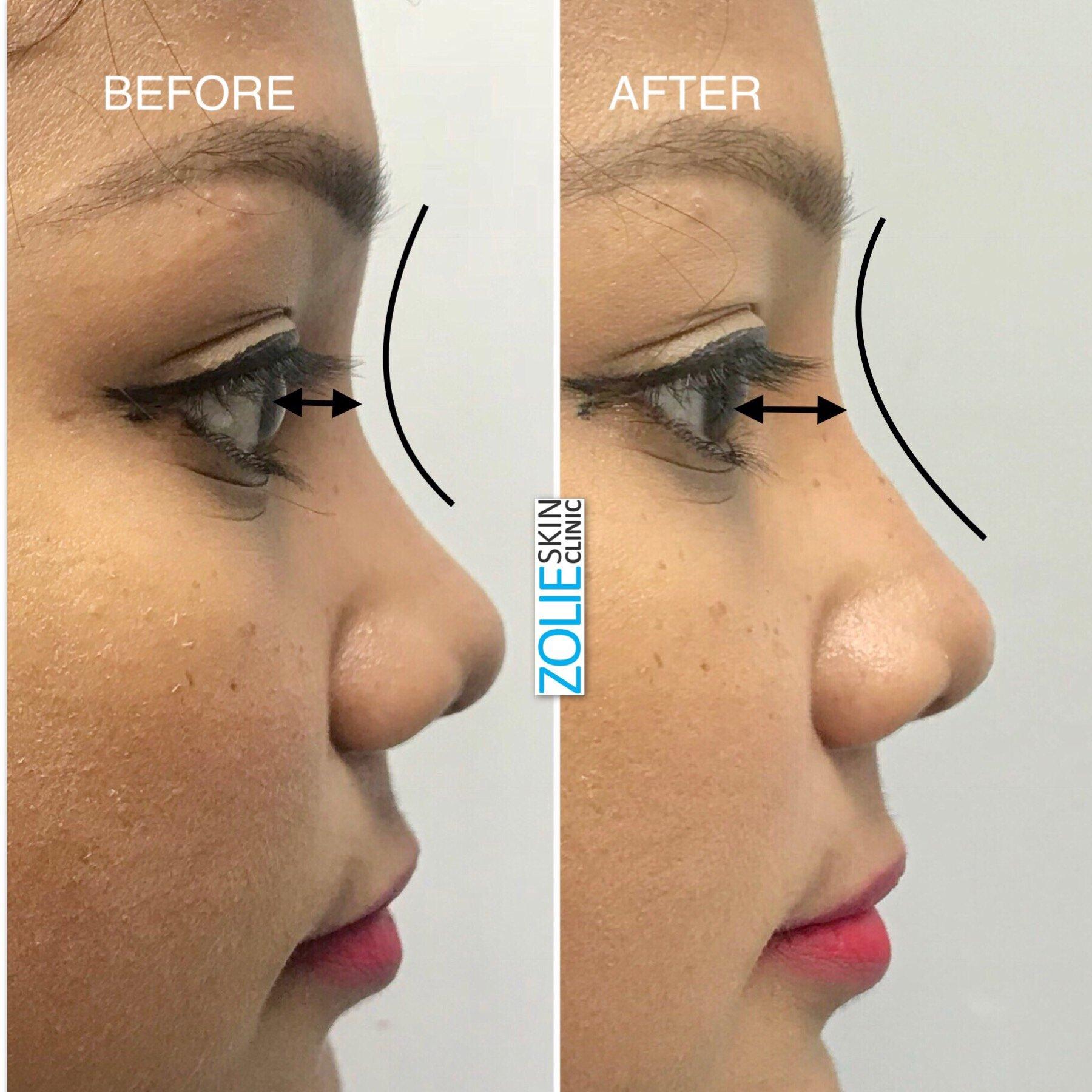 Non Surgical Rhinoplasty Nose Job Zolieskinclinic