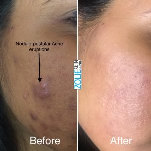 How-to-Reduce-and-Treat-Acne-Zolieskinclinic