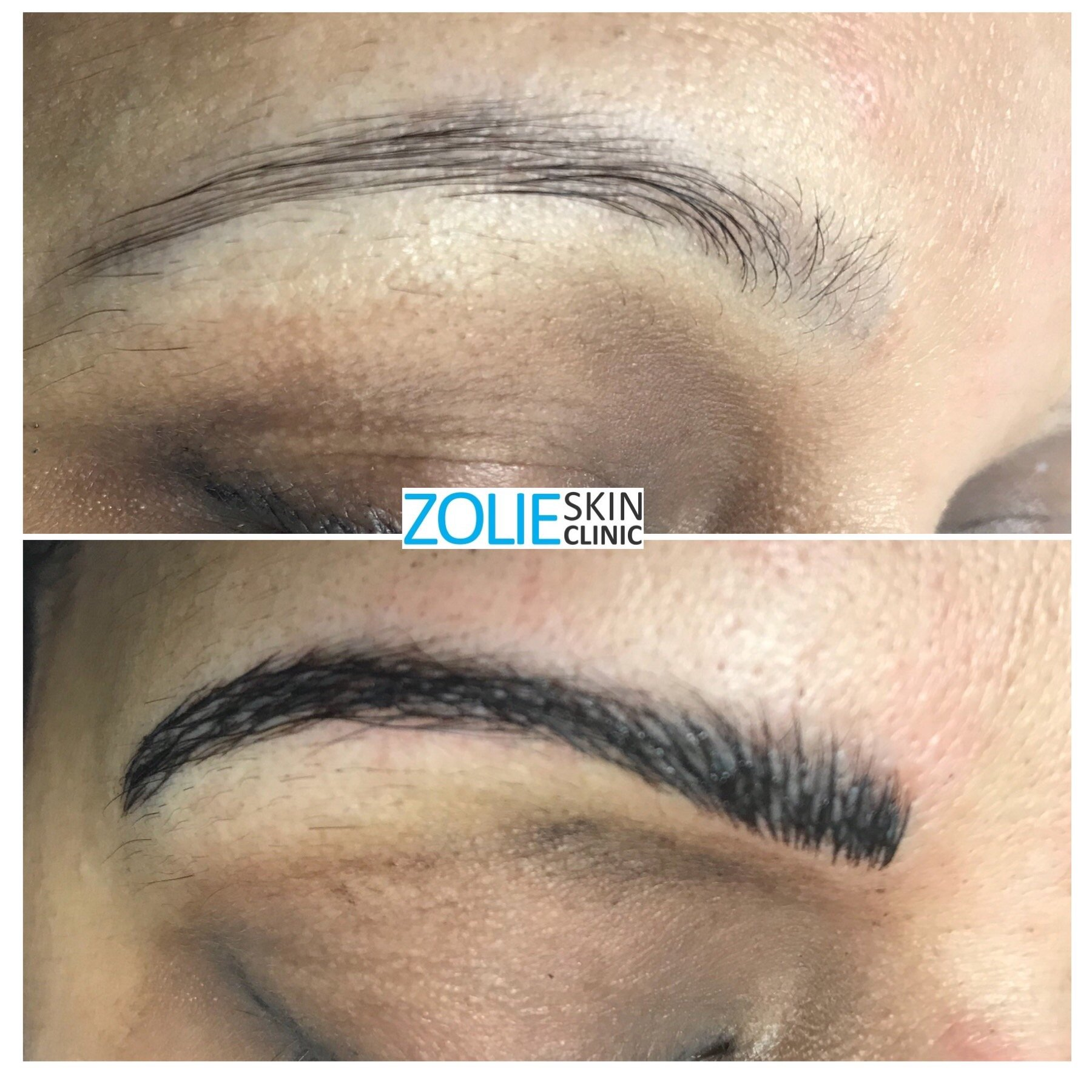 Microblading Before After