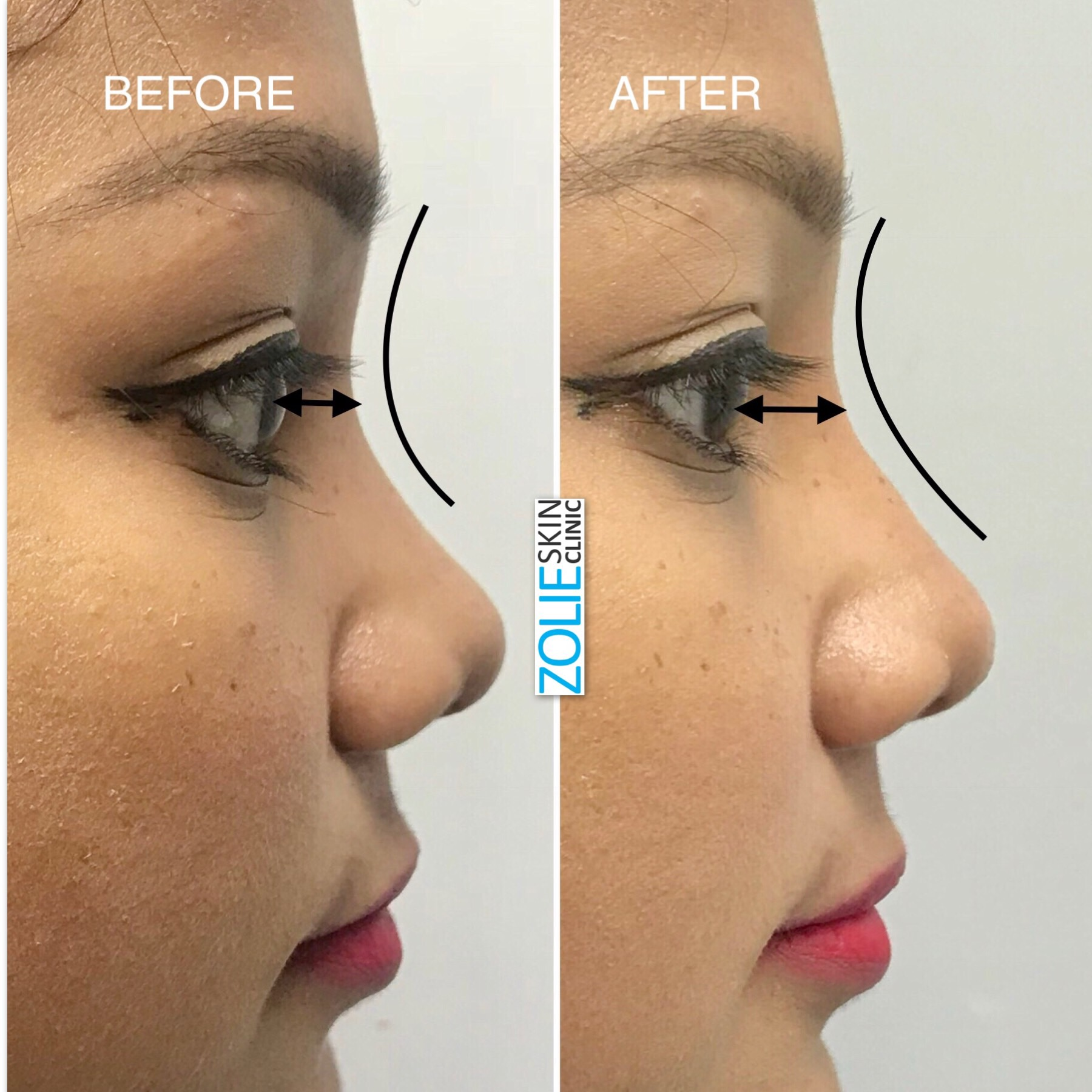 Cost of Fillers Treatment in Greater Kailash, New Delhi- ZolieSkinClinic